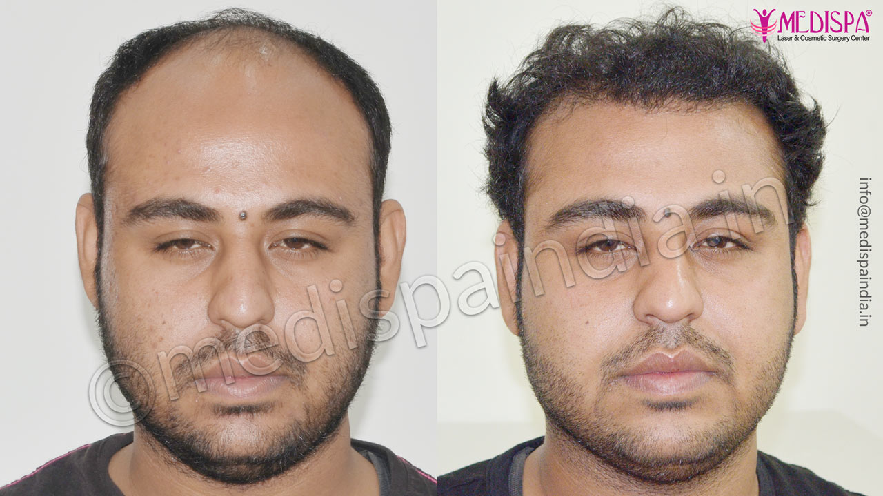 hair transplant cost in dubai