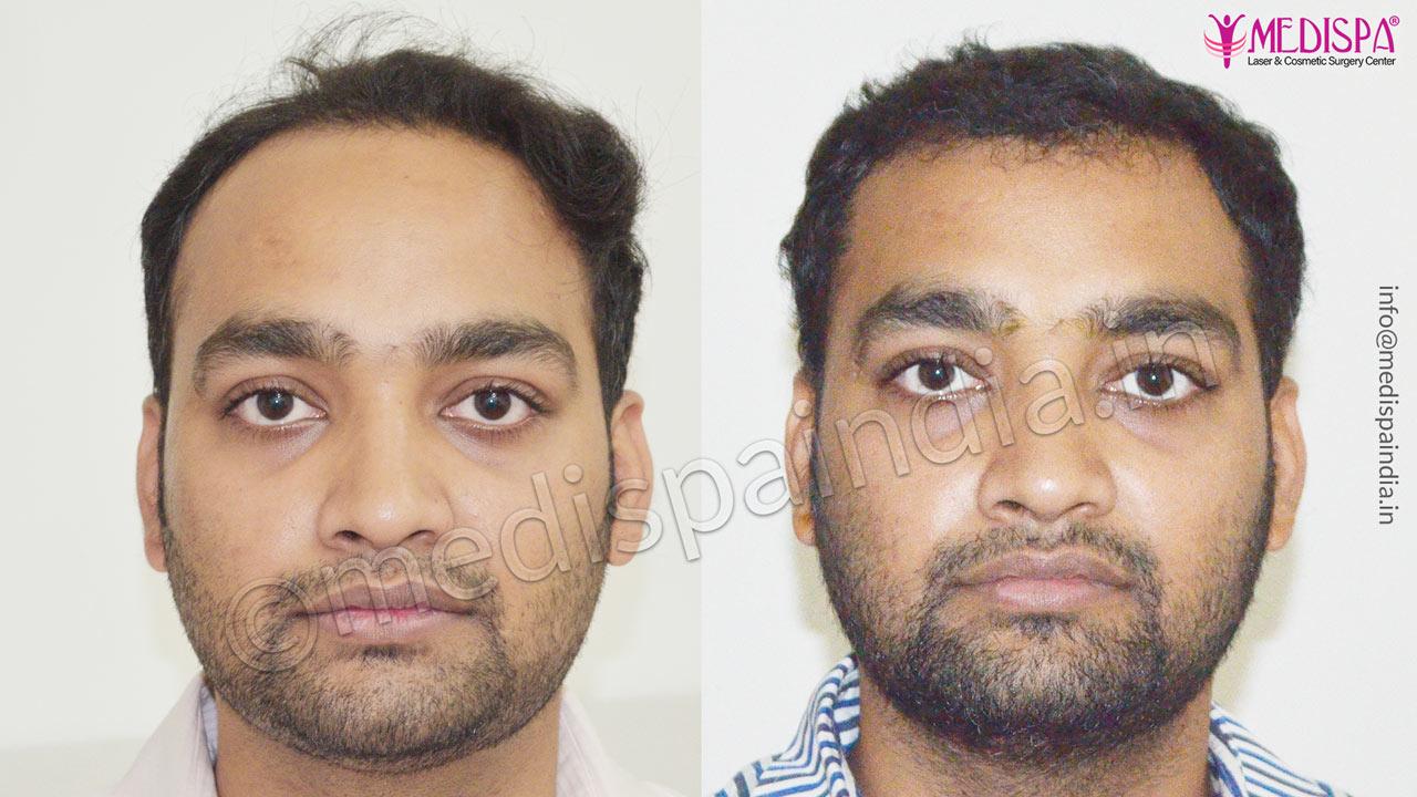 delhi hair transplant cost