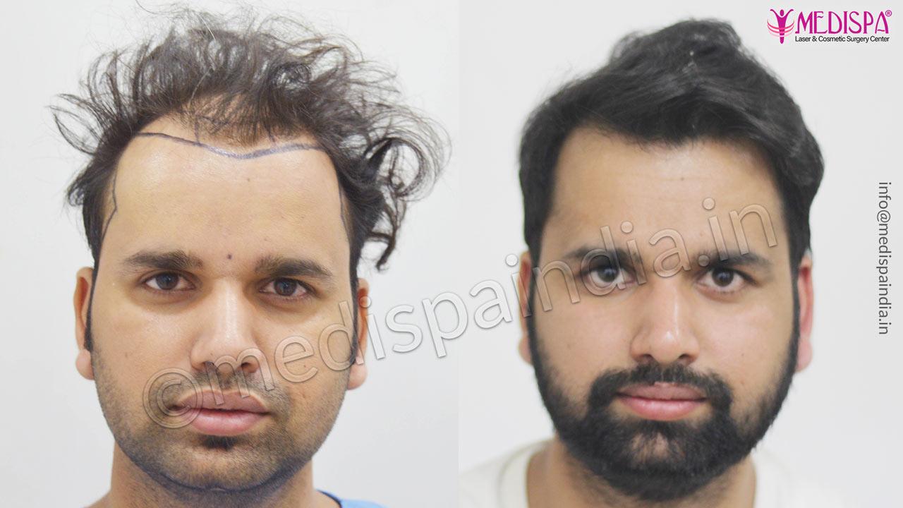 hair restoration cost india