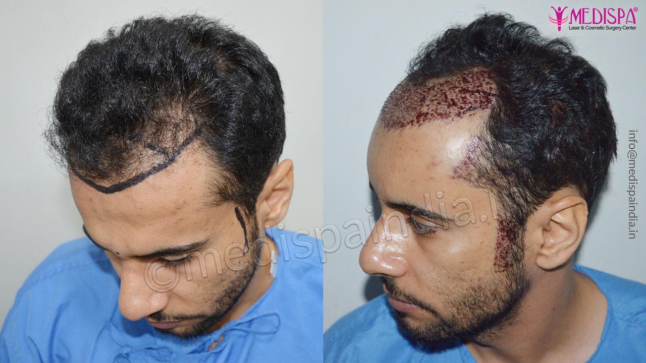 hair transplant result dubai