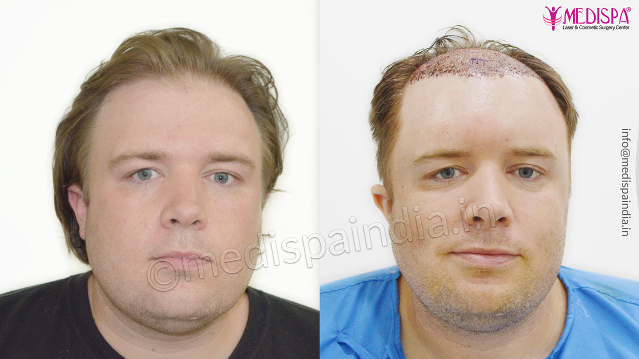 hair transplant usa results