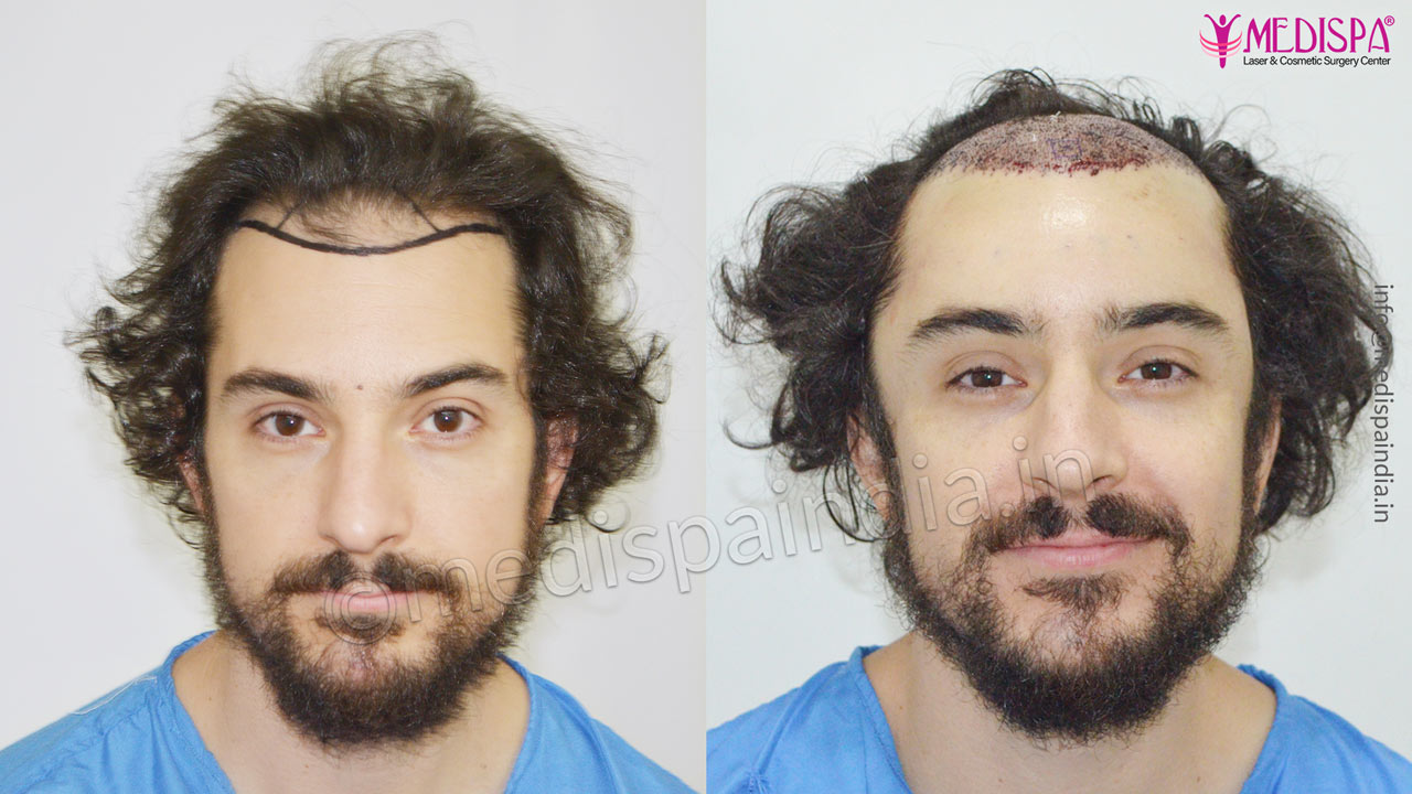 usa hair transplant results