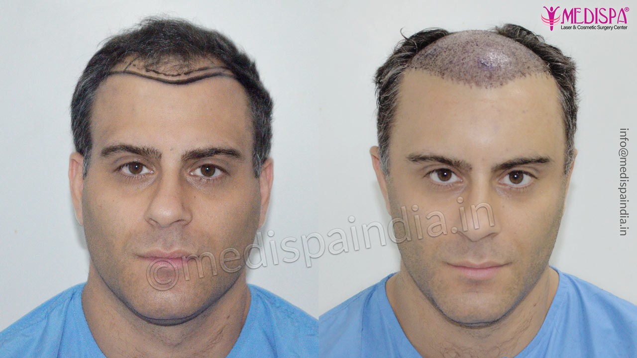 uk hair transplant results