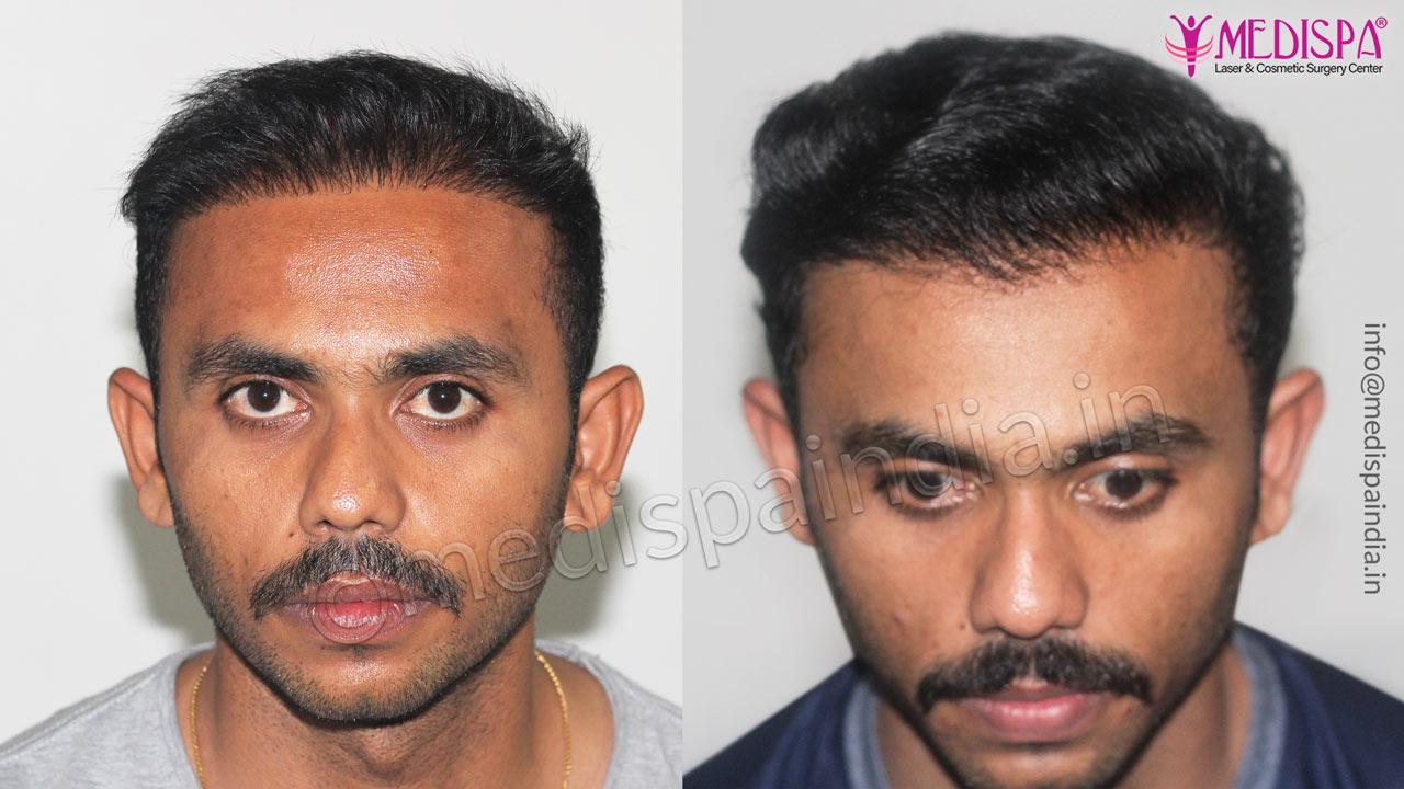 best hair transplant results in jaipur