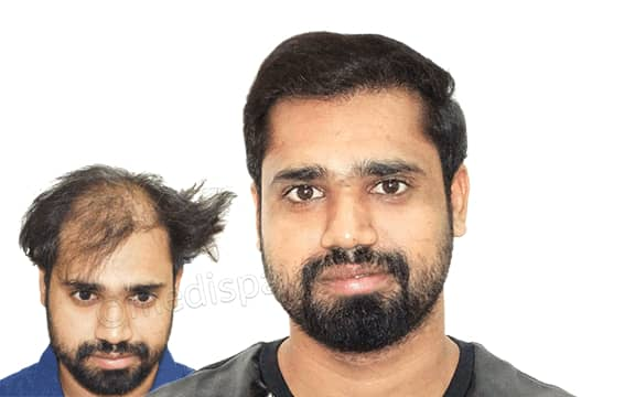 affordable hair transplant cost in india